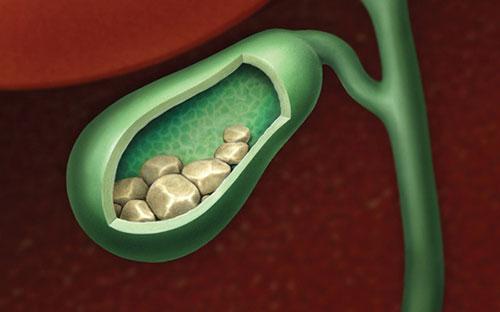 Nguyên nhân và cơ chế và phương pháp điều trị sỏi mật