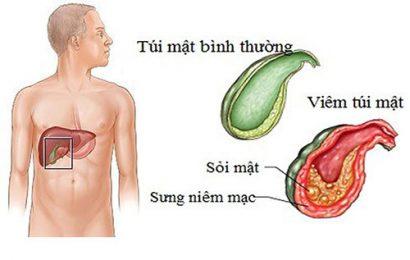 Nguyên nhân, dấu hiệu và phương pháp điều trị sỏi mật