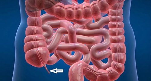 Nhận biết sớm viêm ruột thừa giúp bệnh nhân tránh được những biến chứng nguy hiểm