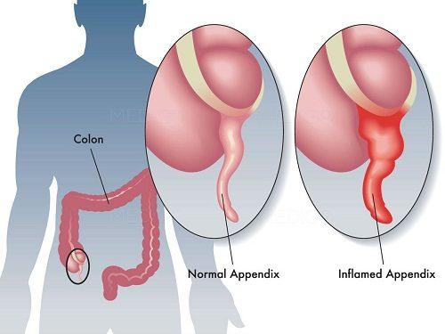 Điều trị viêm ruột thừa bằng cách nào?