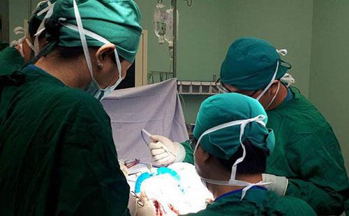 Điều trị bằng ngoại khoa phình thực quản