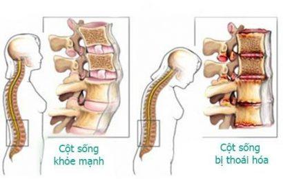 Mẫu bệnh án y học cổ truyền thoái hóa cột sống thắt lưng