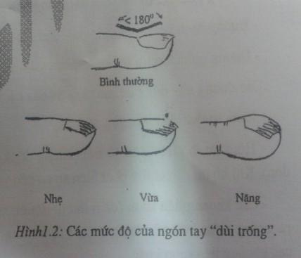 Cơ chế hình thành ngón tay (Chân) dùi trống