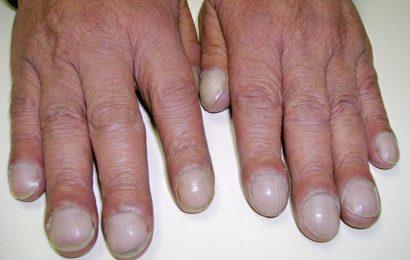 Dấu hiệu ngón tay (chân) dùi trống trong bệnh học
