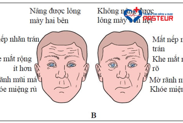 Hội chứng Ramsay Hunt