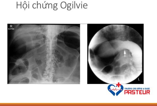 Hội chứng Ogilvie là gì?