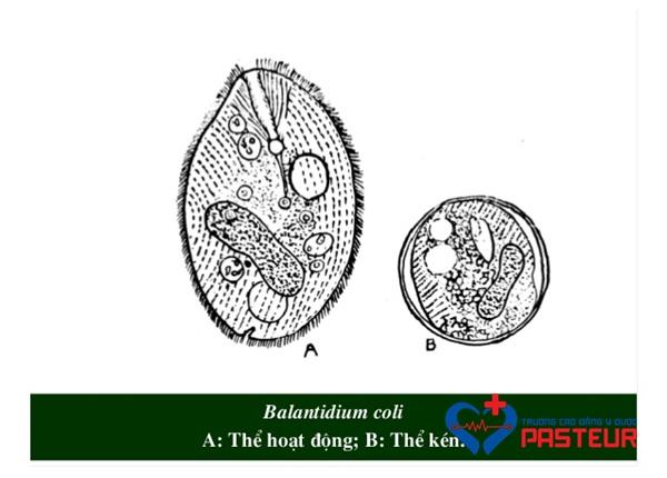 Cùng tìm hiểu về trùng lông Balantidium coli
