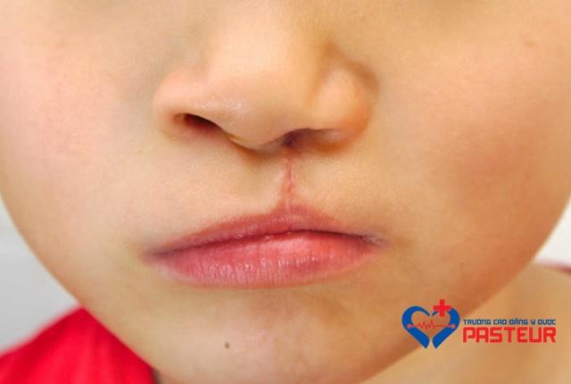Hội chứng Stickler
