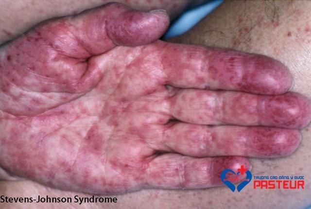 Nguyên nhân gây hội chứng Stevens-Johnson