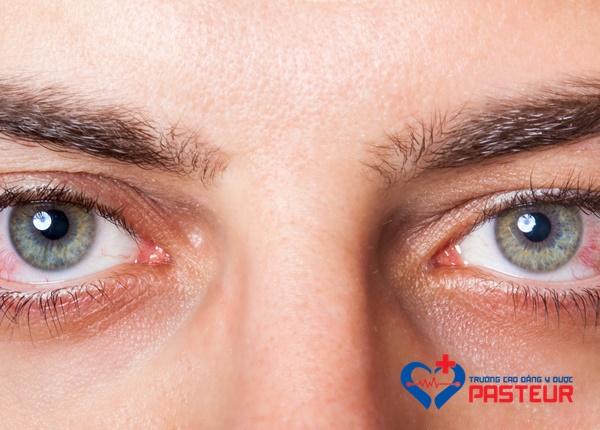 Hội chứng khô mắt có nguy hiểm không?