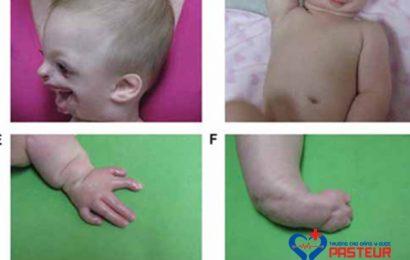Hội chứng Ablepharon-Macrostomia ở trẻ nhỏ