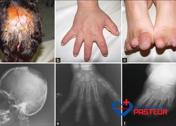 Hội chứng bất sản chân bì bẩm sinh Adams-Oliver và những điều cần biết