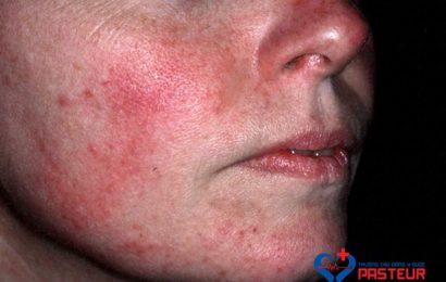 Dấu hiệu nhận biết và phương pháp điều trị hội chứng Carcinoid