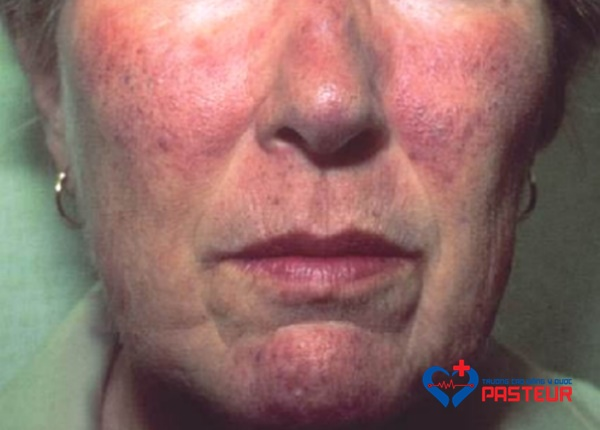Hội chứng Carcinoid