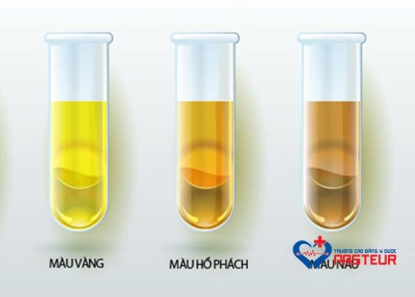 Thành phần hóa học của nước tiểu bình thường