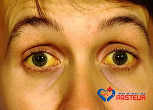 Triệu chứng bệnh Nhiễm xoắn khuẩn vàng da Leptospira