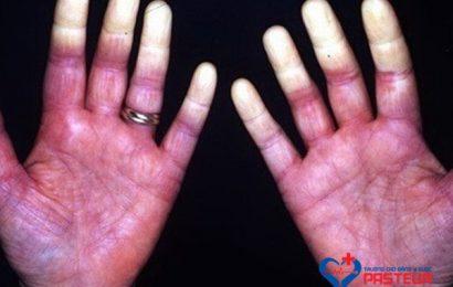Phương pháp điều trị cho người mắc hội chứng Raynaud