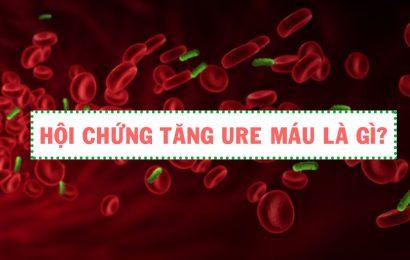 Dấu hiệu và phương pháp điều trị hội chứng huyết tán tăng Ure máu