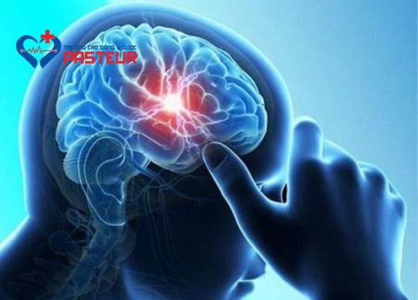 Xuất huyết não là gì?
