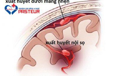 Bệnh lý xuất huyết não: Triệu chứng, và biện pháp phòng tránh