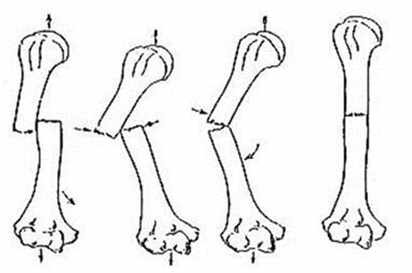 Giải phẫu bệnh và sinh lý bệnh gãy xương hở
