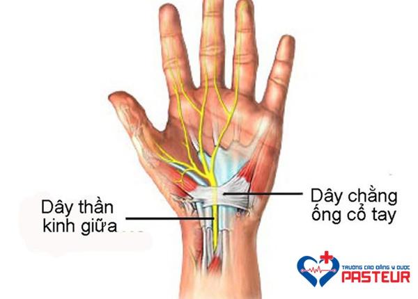 Xử trí thế nào khi bị hội chứng ống cổ tay