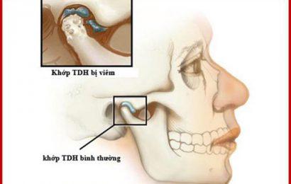Tìm hiều nguyên nhân và triệu chứng của bệnh viêm khớp thái dương hàm