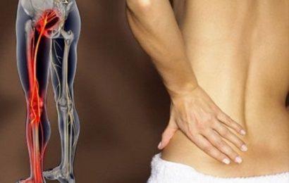 Đau nhức từ mông xuống bắp chân là do các bệnh nào gây nên?