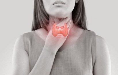Tìm hiểu bệnh bướu giáp đa nhân và hướng điều trị bệnh