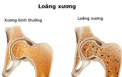 Bạn hiểu như thế nào về tình trạng thiếu xương và loãng xương?