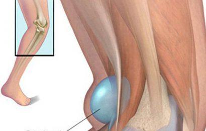 U nang baker – nang hoạt dịch vùng khoeo chân gây nên biến chứng gì?