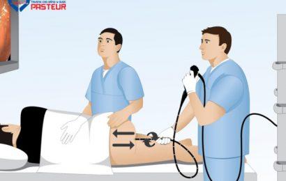 Quy trình kỹ thuật nội soi trực tràng trên cận lâm sàng
