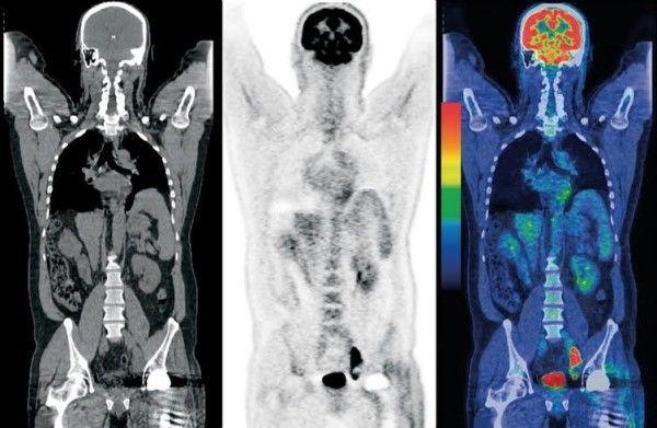 Quy trình kỹ thuật chụp PET/CT trong chẩn đoán hình ảnh Y học hạt nhân