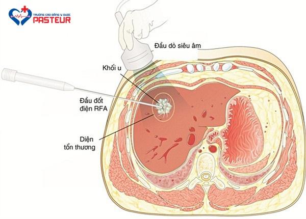 Kỹ thuật RFA trong điều trị ung thư gan
