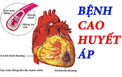 Những lý do nào khiến bạn bị mắc bệnh cao huyết áp