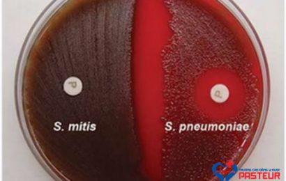 Quy trình thử nghiệm Optochin trong phòng thí nghiệm